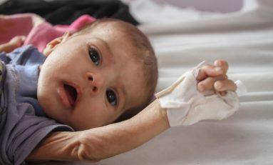 Yemen, otto milioni di bambini senza cure mediche
