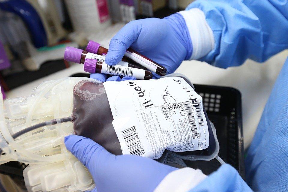 Covid-19: Plasma convalescente per rallentare l'epidemia