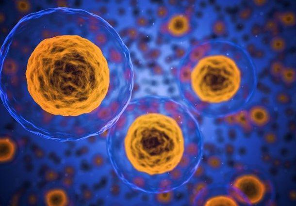 Sclerosi multipla: novità da trapianto di cellule staminali