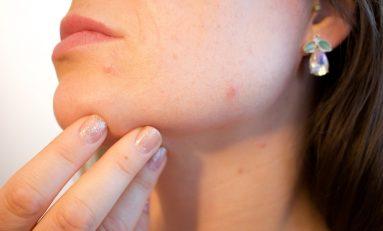 Salute: Adoi, la dermatologia clinica in campo per sconfiggere il Covid